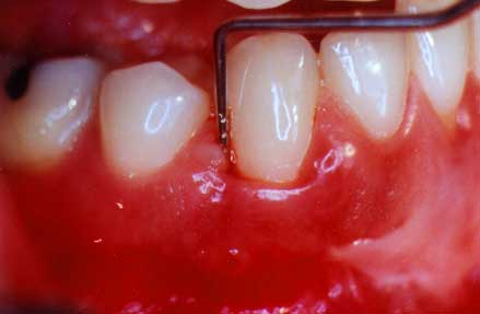 periodontal probe in pocket